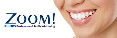 staten island teeth whitening