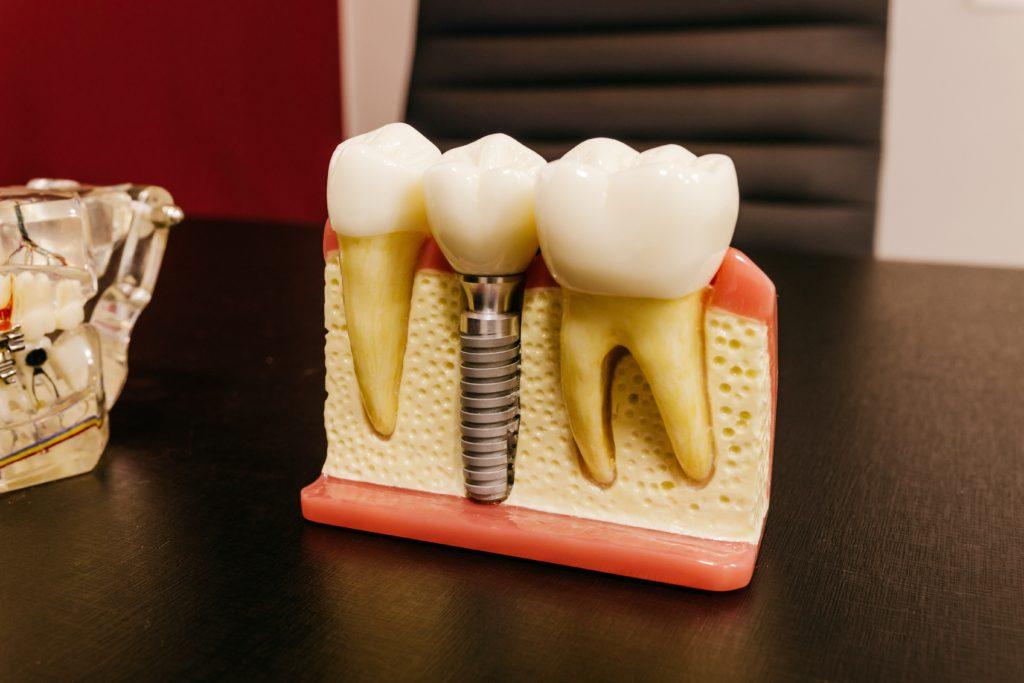 dentist staten island